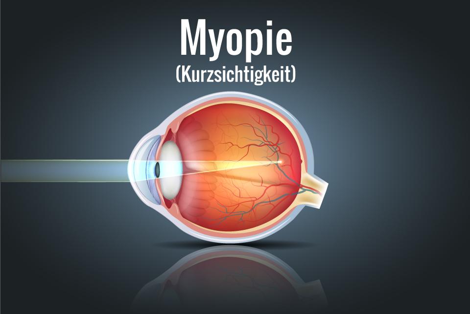 Myopie grafisch dargestellt